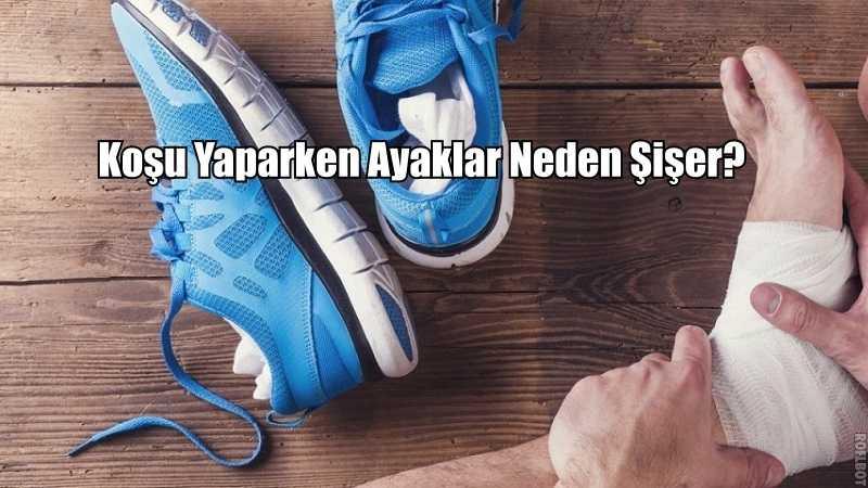 Koşarken Ayaklar Neden Şişer?
